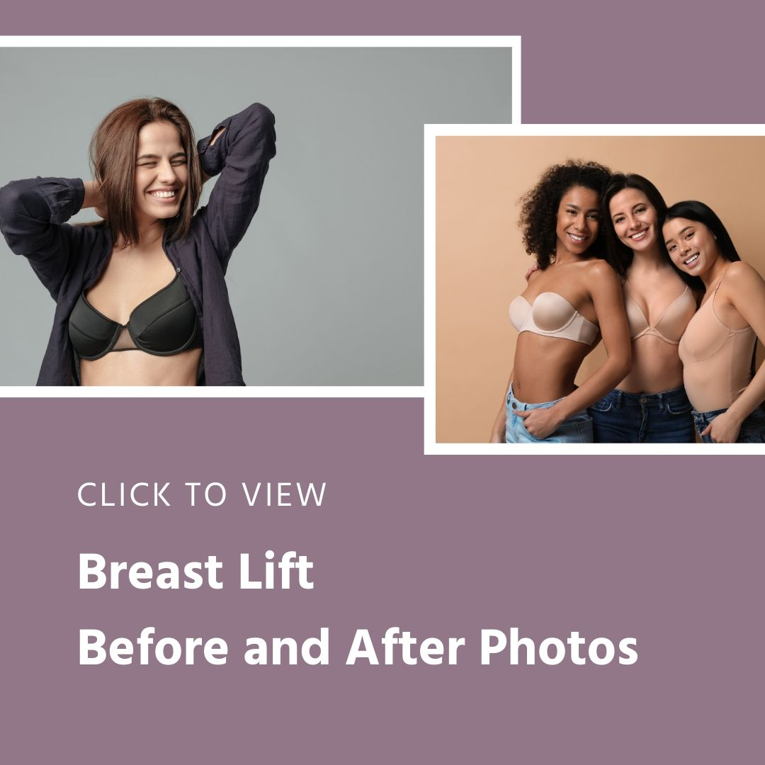 Before and After Breast Lift gallery
