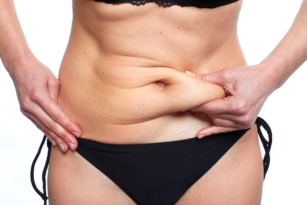 Excess Skin from Weight Loss