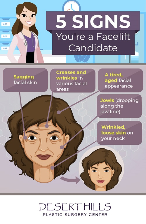 Infographic-Signs you are a facelift candidate