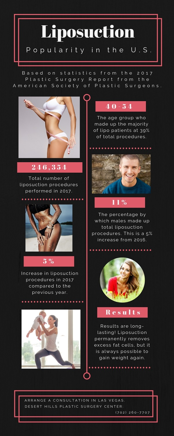 Liposuction in the United States infographic