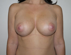 Patient after breast augmentation - Las Vegas NV