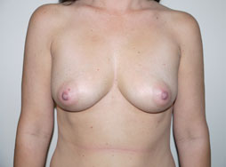 Patient before breast augmentation - Desert Hills Plastic Surgery Center