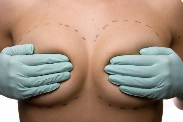 breast surgeon Las Vegas Desert Hills Plastic Surgery
