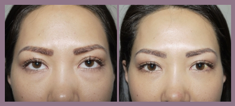 Transconjuntival lower blepharoplasty, 32 yrs, Photos 1 week after eyelid surgery
