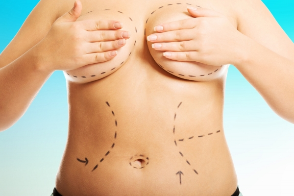 Customizing Cosmetic Surgery | Desert Hills Plastic Surgery Center