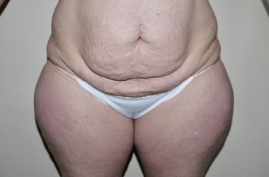 Liposuction Before And After Photo Gallery